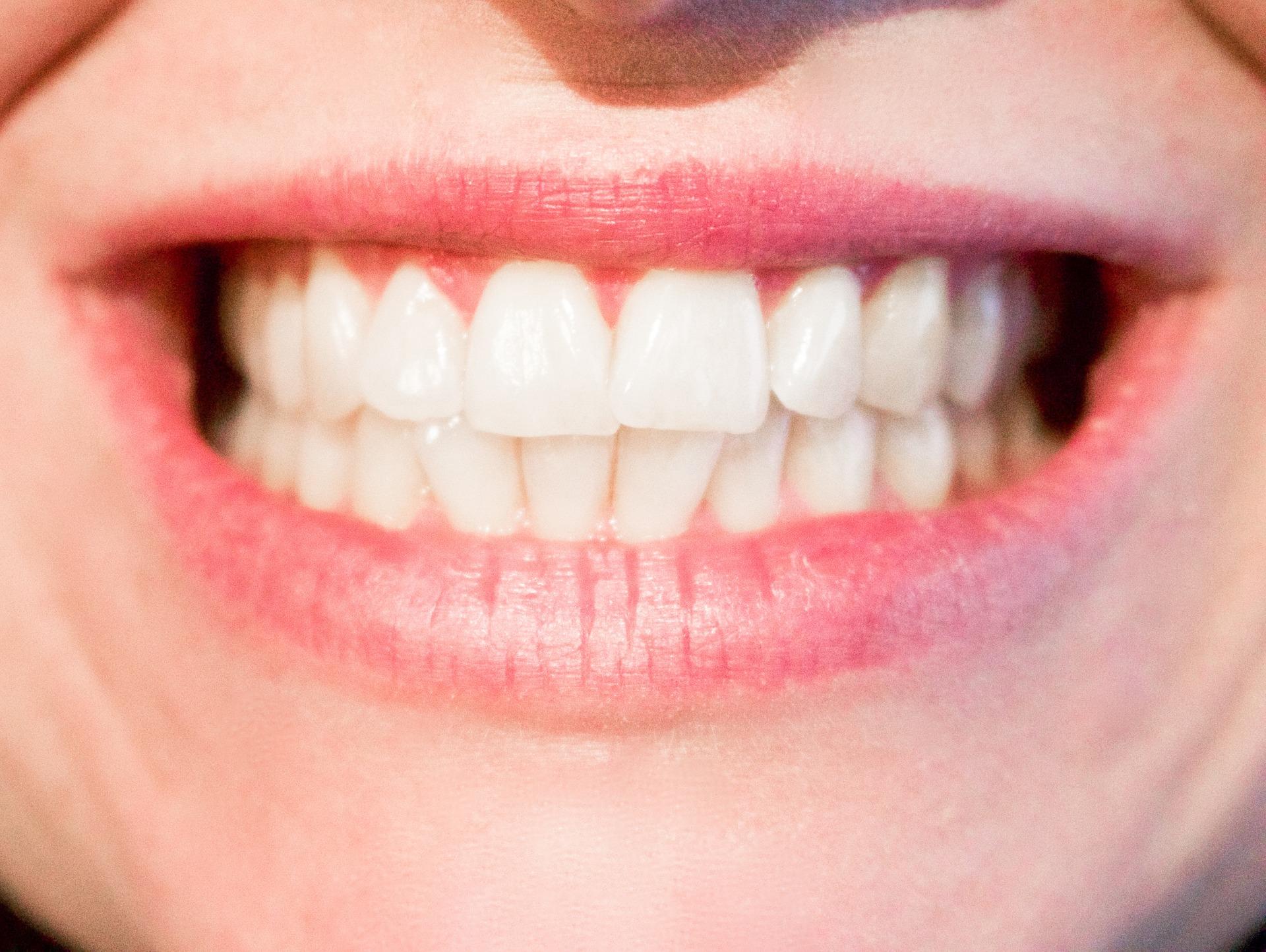 cele mai comune probleme dentare