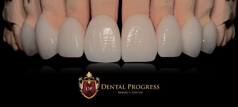 implant dentar